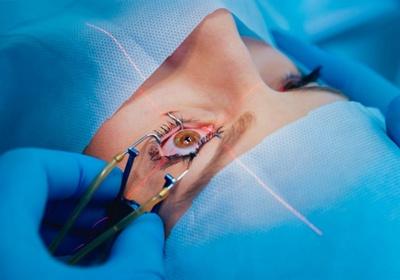 Глазная хирургия